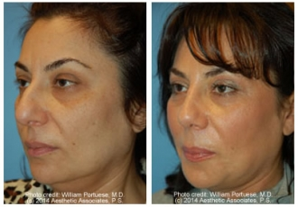 Crooked Nasal Bones Rhinoplasty