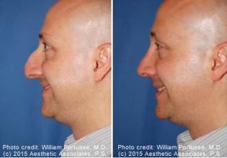 Dorsal Hump Removal Rhinoplasty