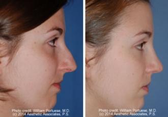 Narrow Nasal Bone Rhinoplasty