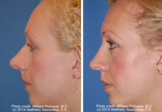 Overly Projected Nose Rhinoplasty