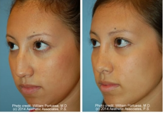 Rhinoplasty & Chin Implant