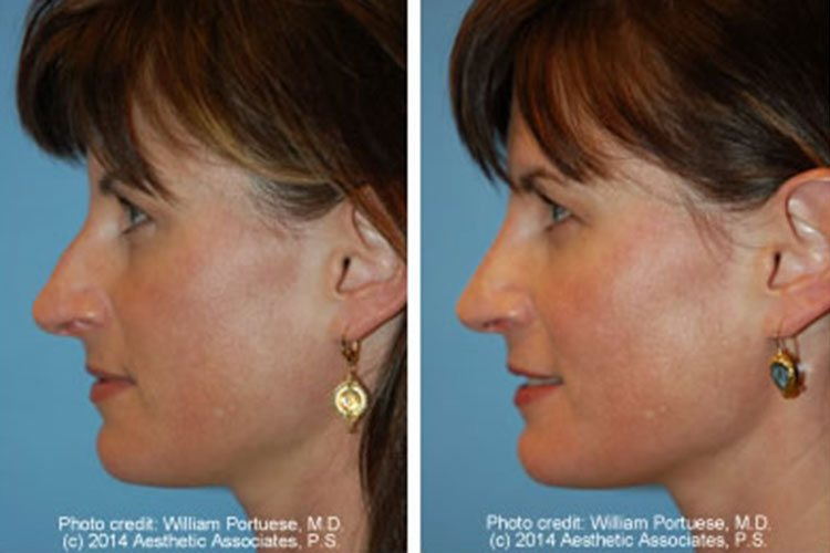 before and after photos of nasal contouring