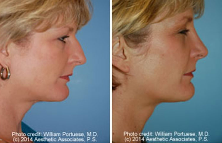Rhinoplasty Portland Oregon